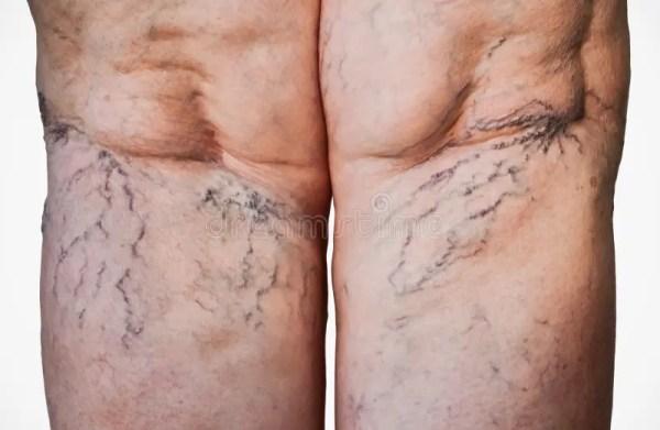 Вздутые вены на ногах стоковое фото. изображение ...