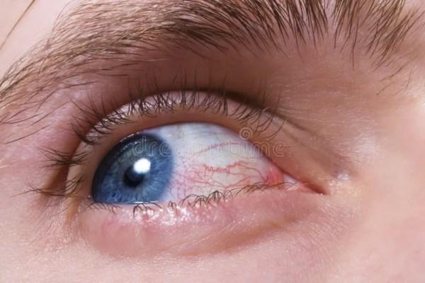 Oeil Bleu D'hommes Avec Les Vaisseaux Sanguins Rouges ...