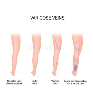 Stages of varicose veins stock vector Illustration of