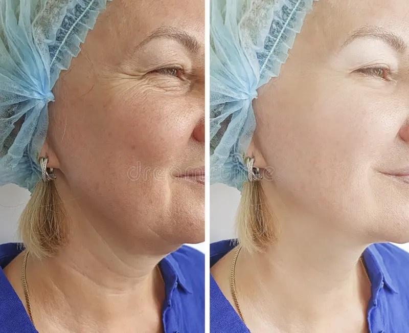 1 906 neck wrinkles photos free