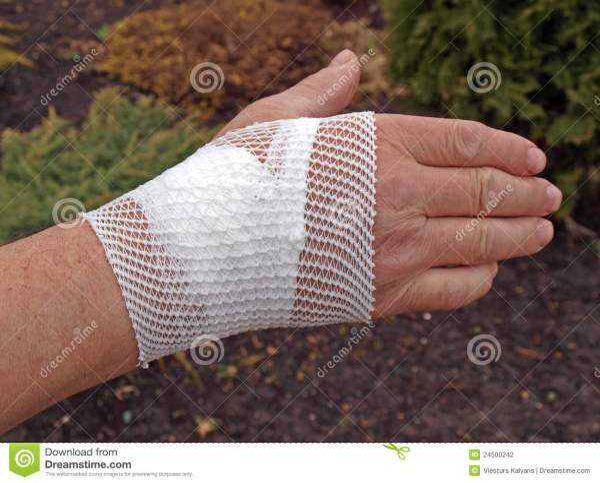 перевязанное запястье руки стоковое фото. изображение ...
