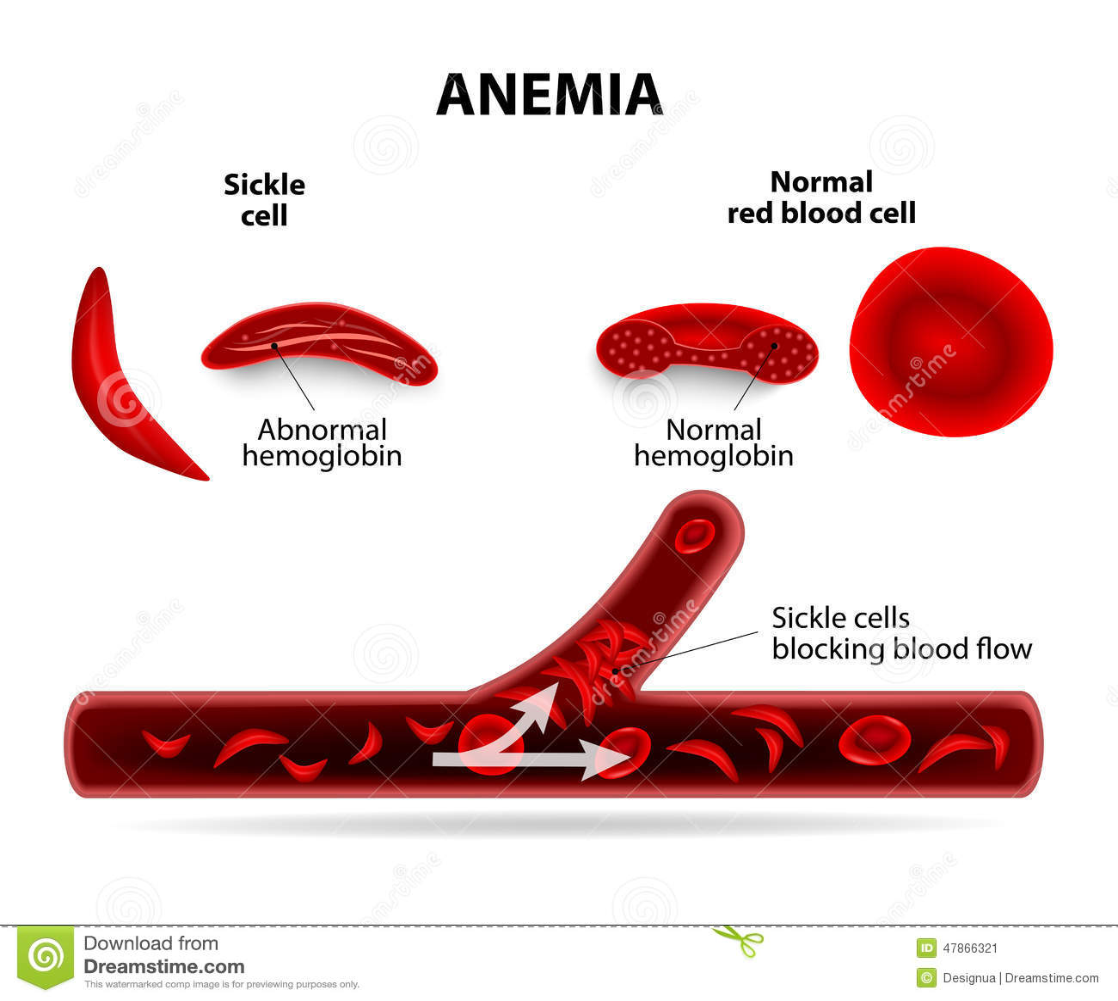 Anemia Stock Vector