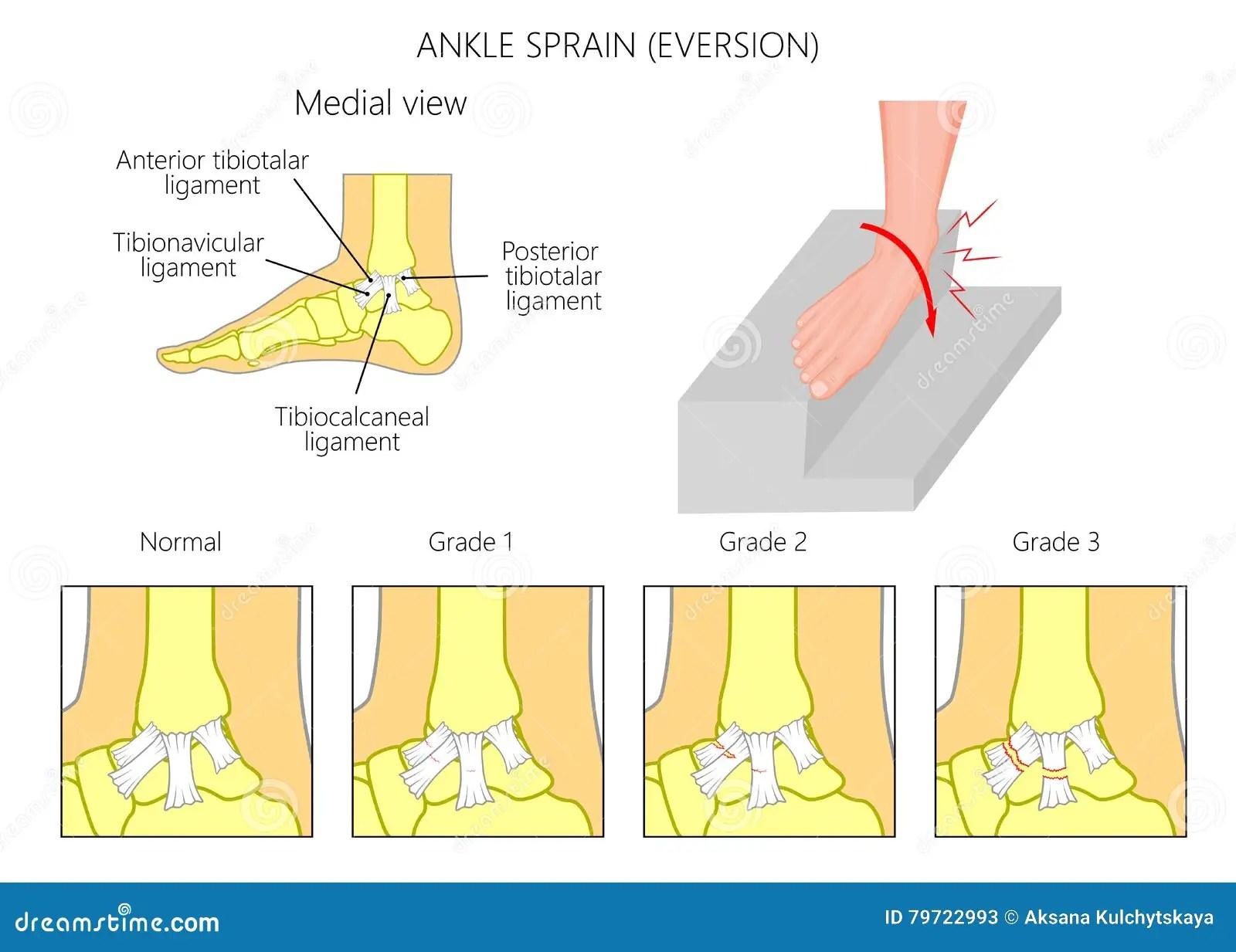 Anatomy Of An Ankle Sprain E Version