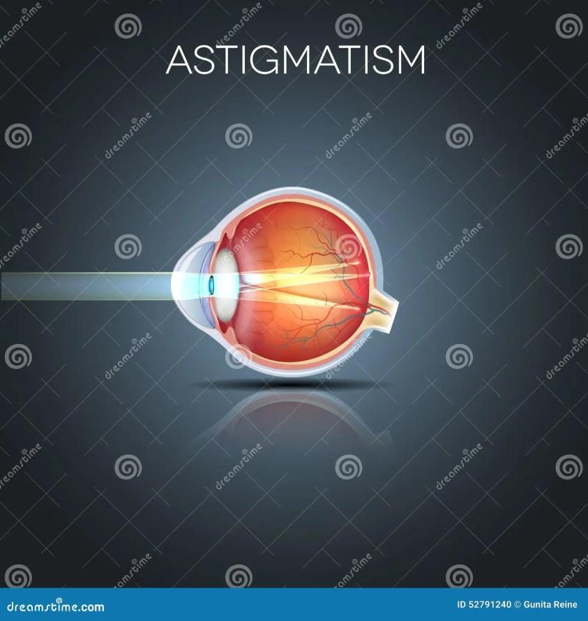 Astigmatism, Blurred Vission Stock Vector - Illustration ...