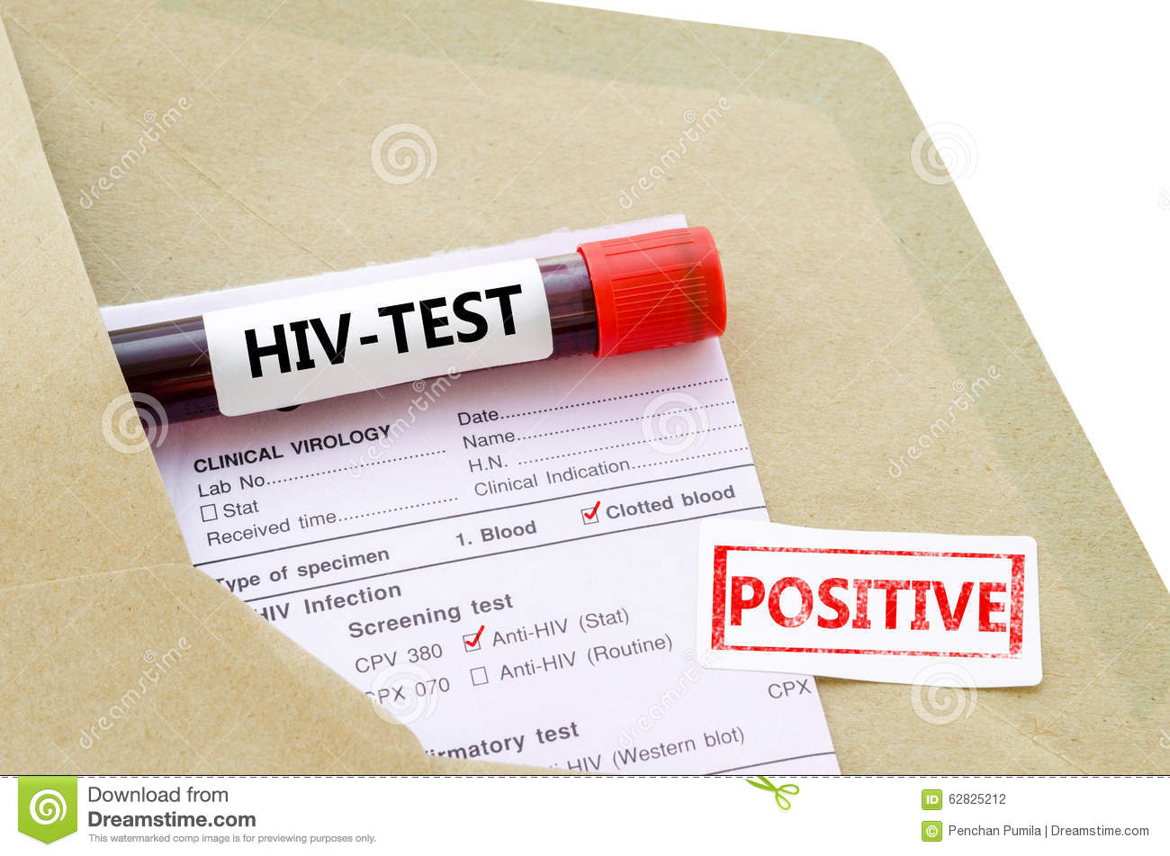 Blood Sample With Hiv Test Positive Stock Photo
