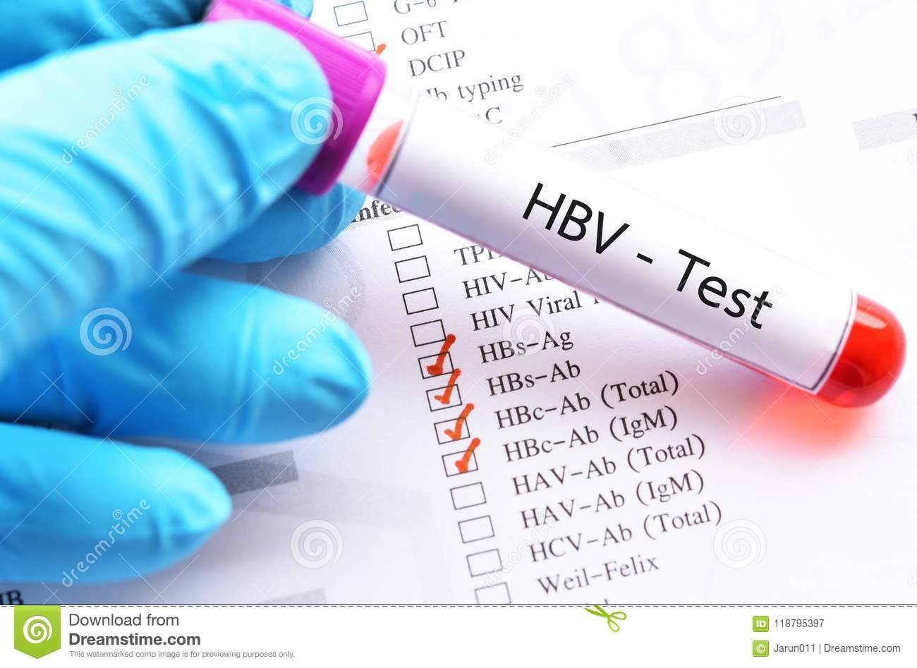 Blood Sample Tube For Hbv Profile Test Stock Image