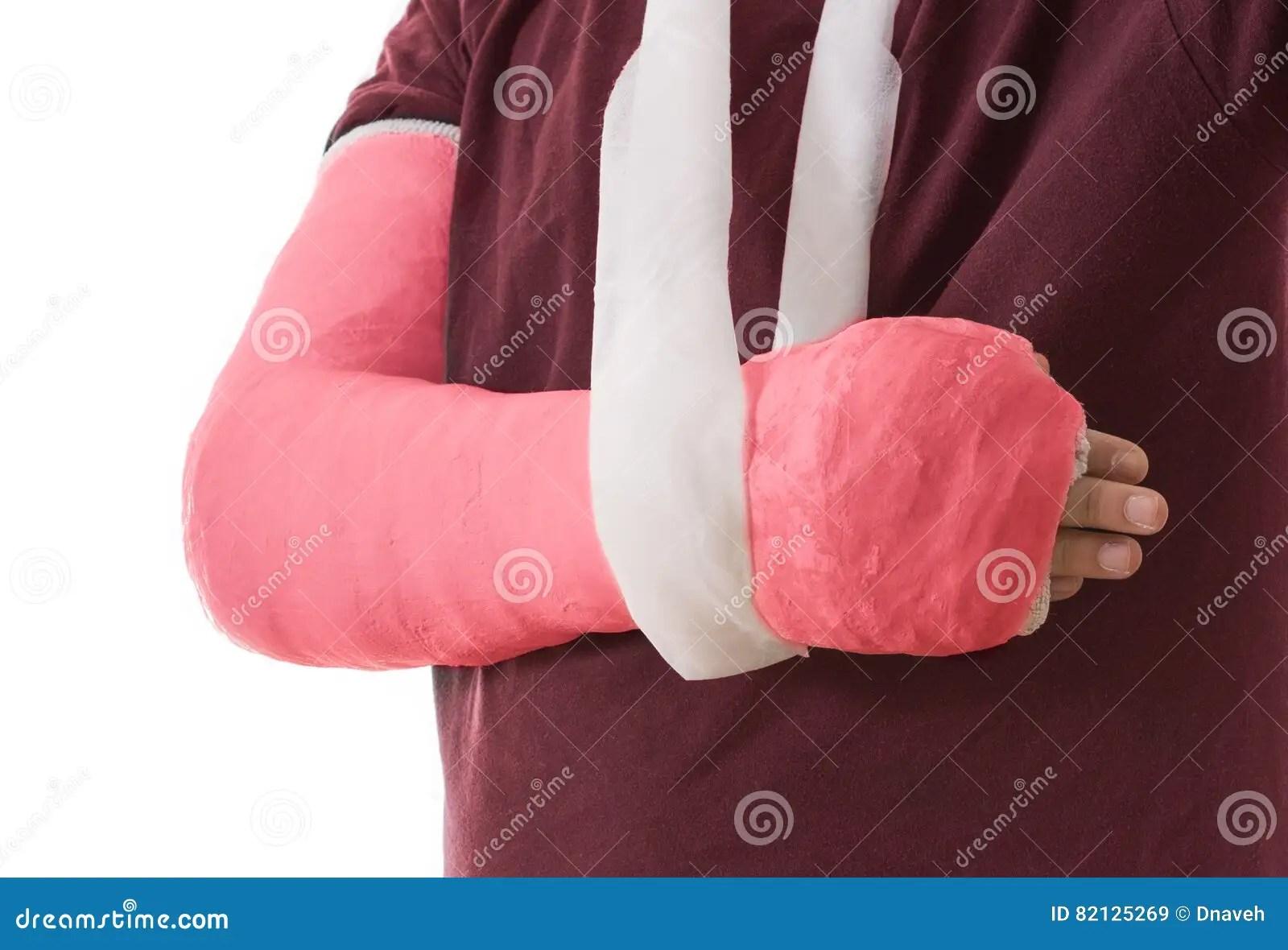 White Cast Broken Elbow