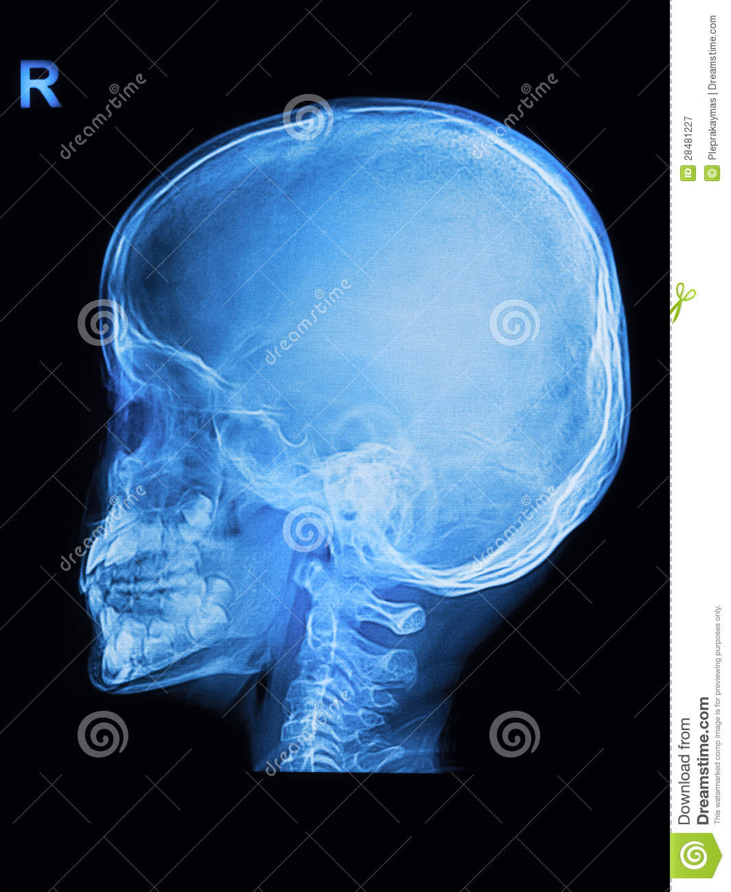 Children Skull X Rays Image Royalty Free Stock Photography