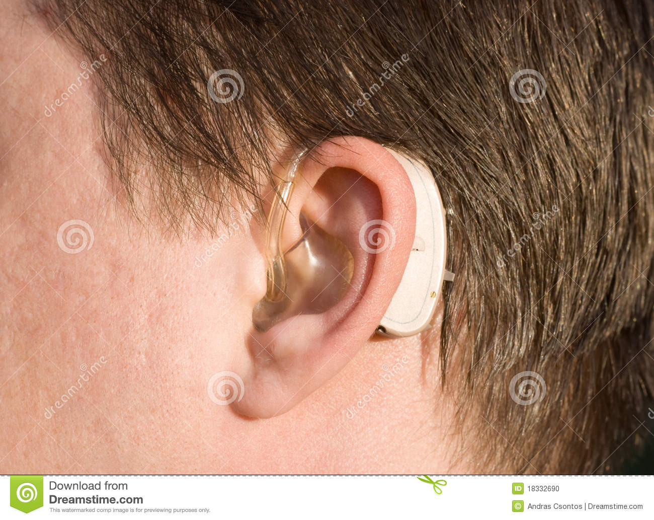 Close Up Of A Man Ear With A Hearing Aid Stock Photo