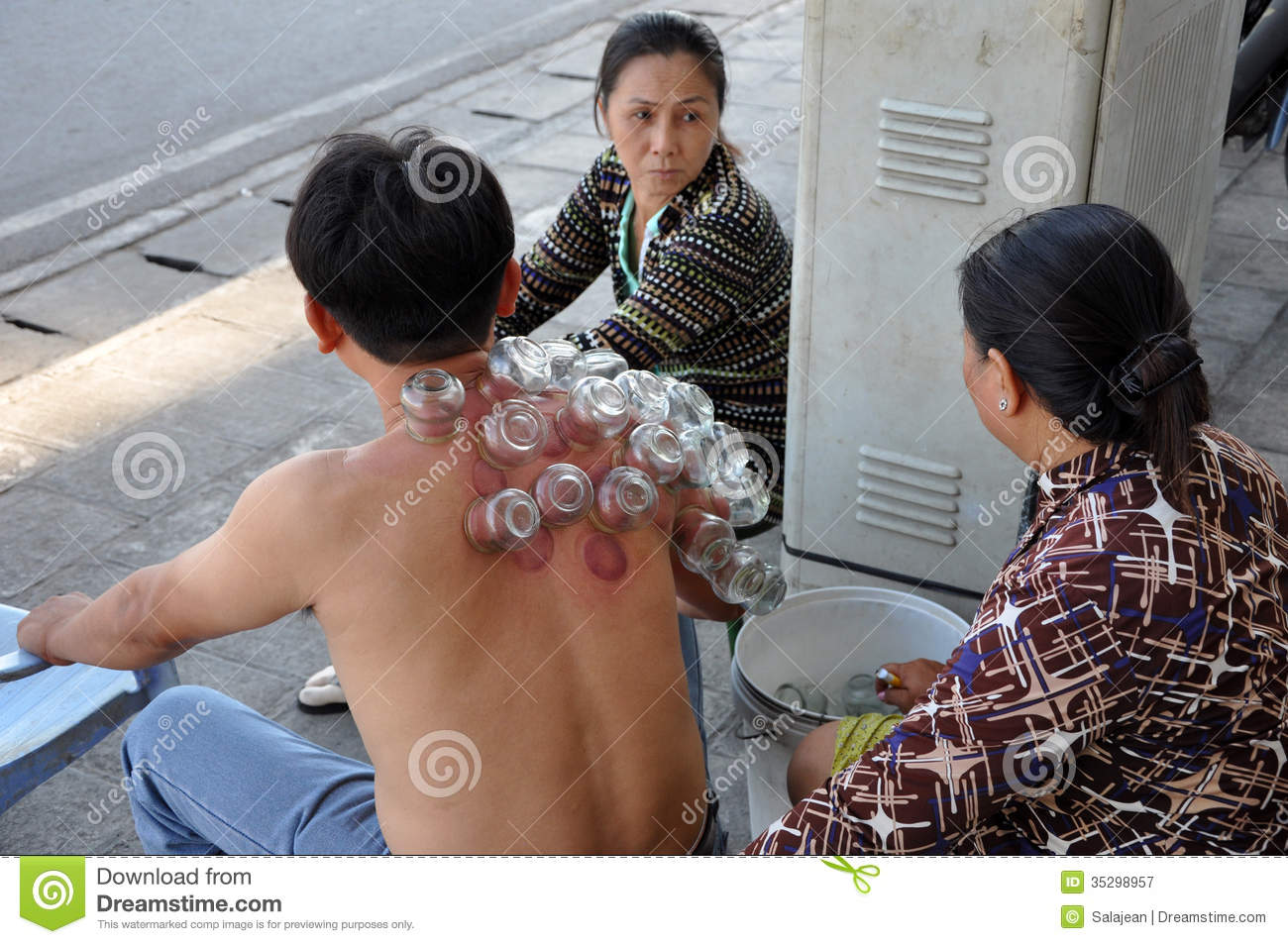 Cup Therapy In Vietnam Editorial Photography Image Of