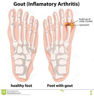 Gout Cartoons, Illustrations & Vector Stock Images  159