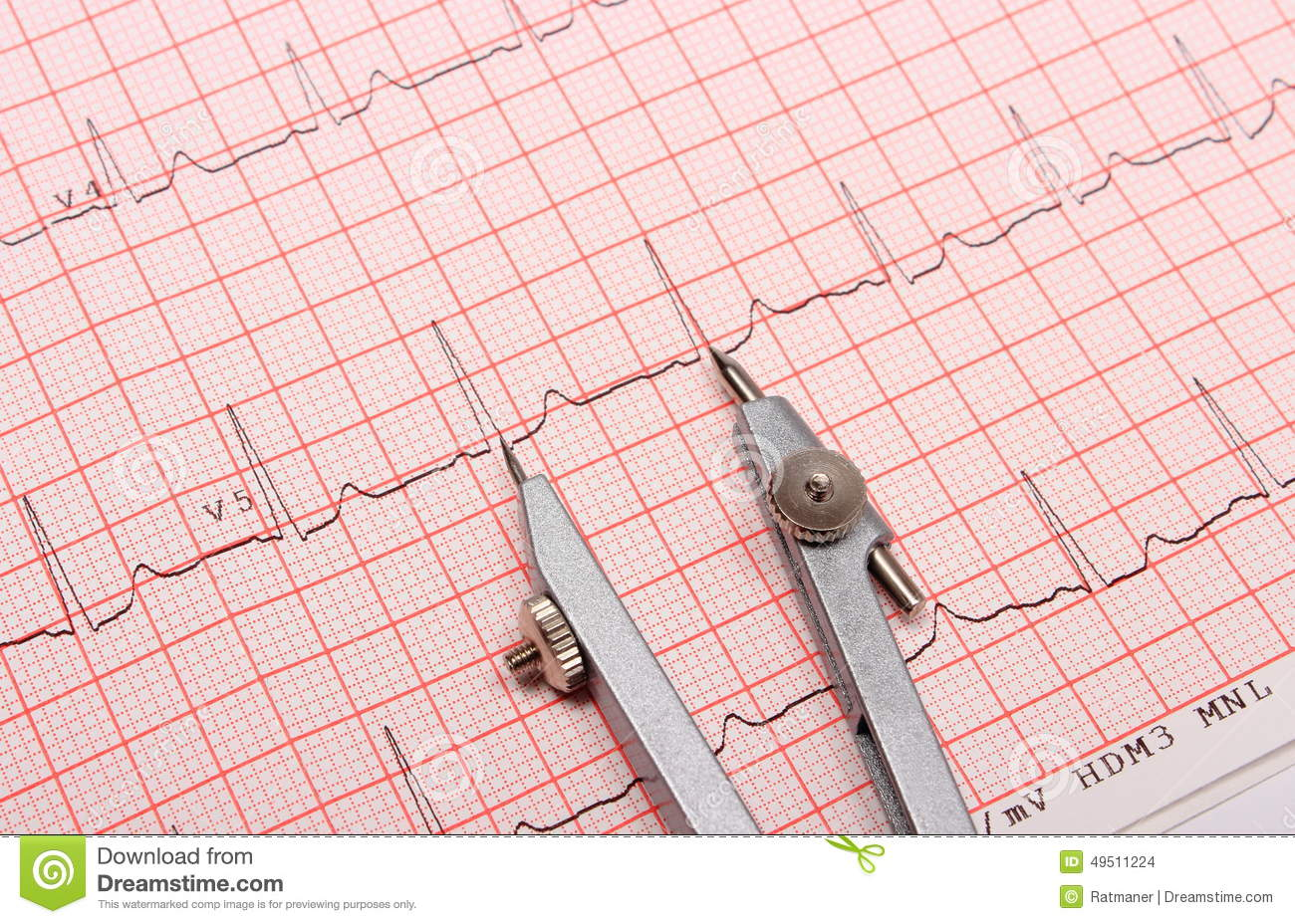Electrocardiogram Graph Report And Calipers Stock Photo