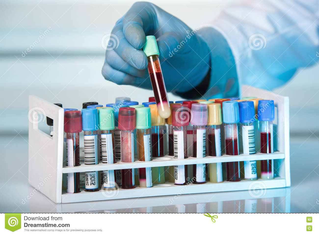 Hand Holding Tube Of Rack With Blood Test Tubes In Clinical Lab Stock Image