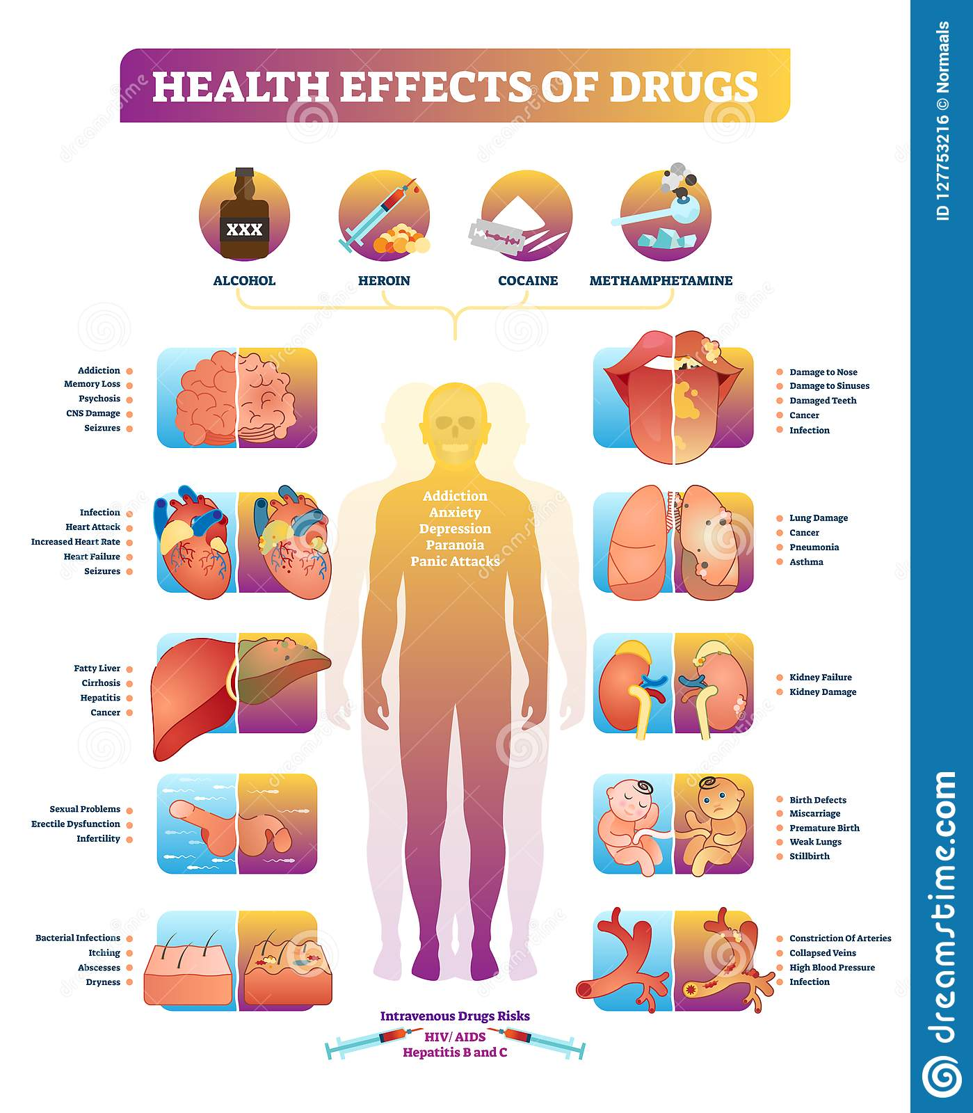Health Effects Of Illegal Drugs Vector Illustration