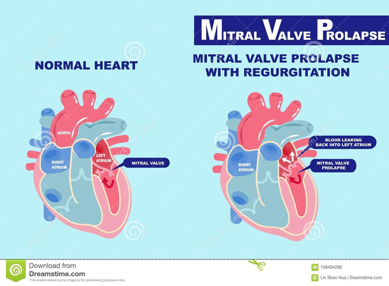 Valve Prolapse Anatomy Mitral