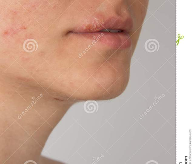 Herpes Sore With Pus On The Lips Of A Young Girl And Pimples On The Face