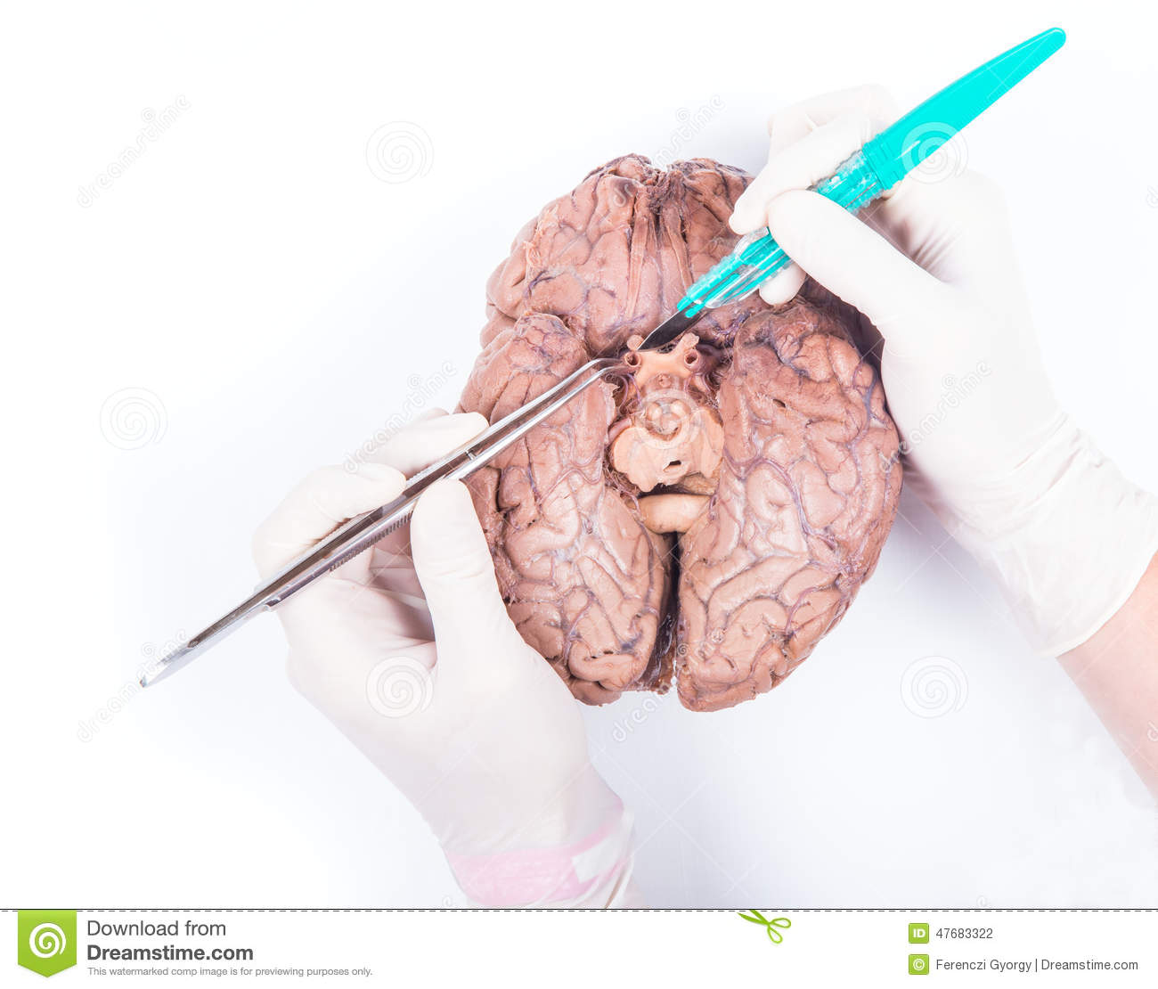 Human Brain Dissection Stock Photo Image Of Ophtalmic