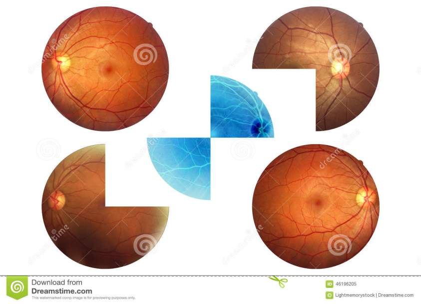 Human Eye Anatomy, Retina, Optic Disc Artery And Vein Etc ...