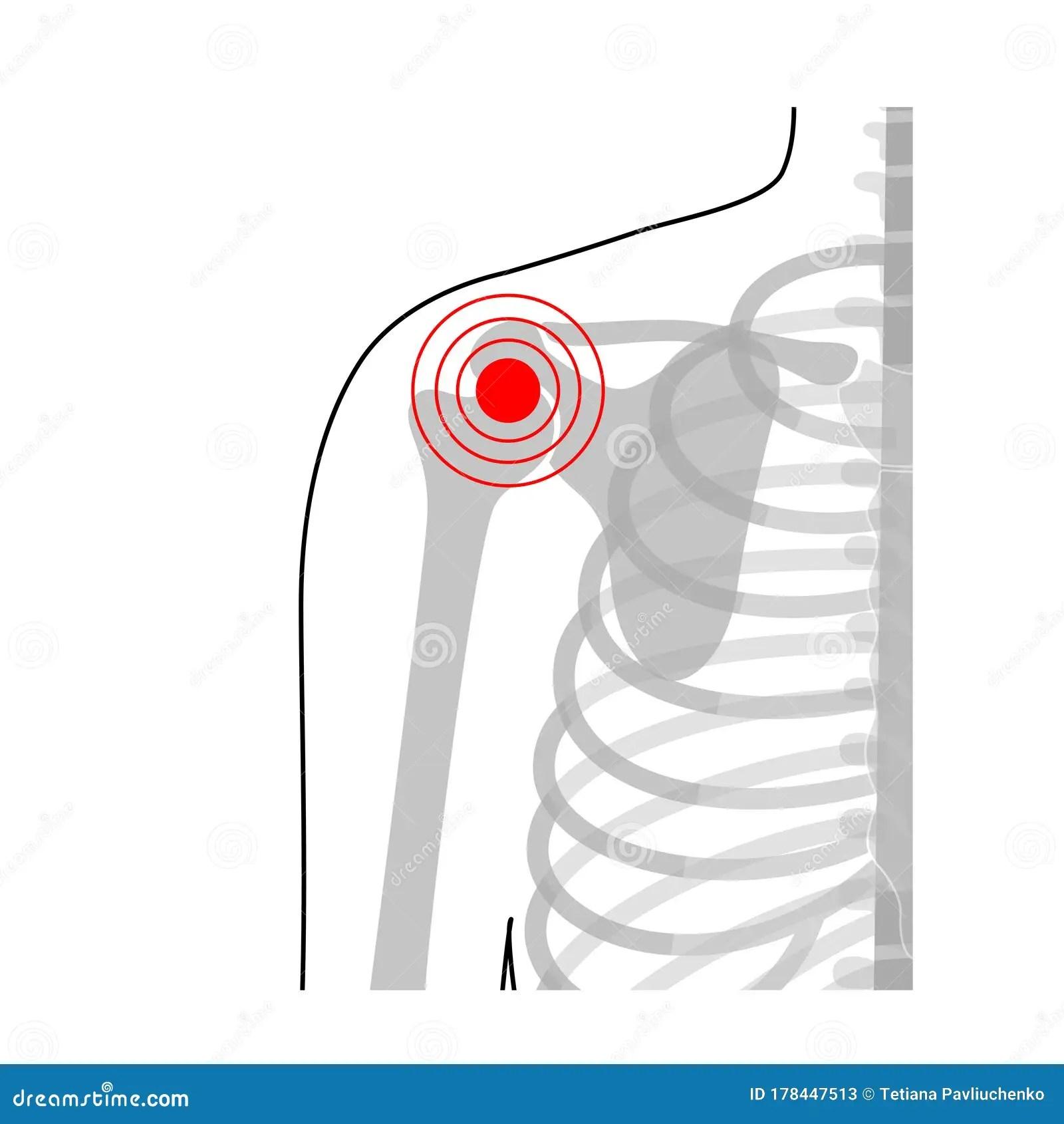 Human Shoulder Joint Pain Anatomy Stock Vector