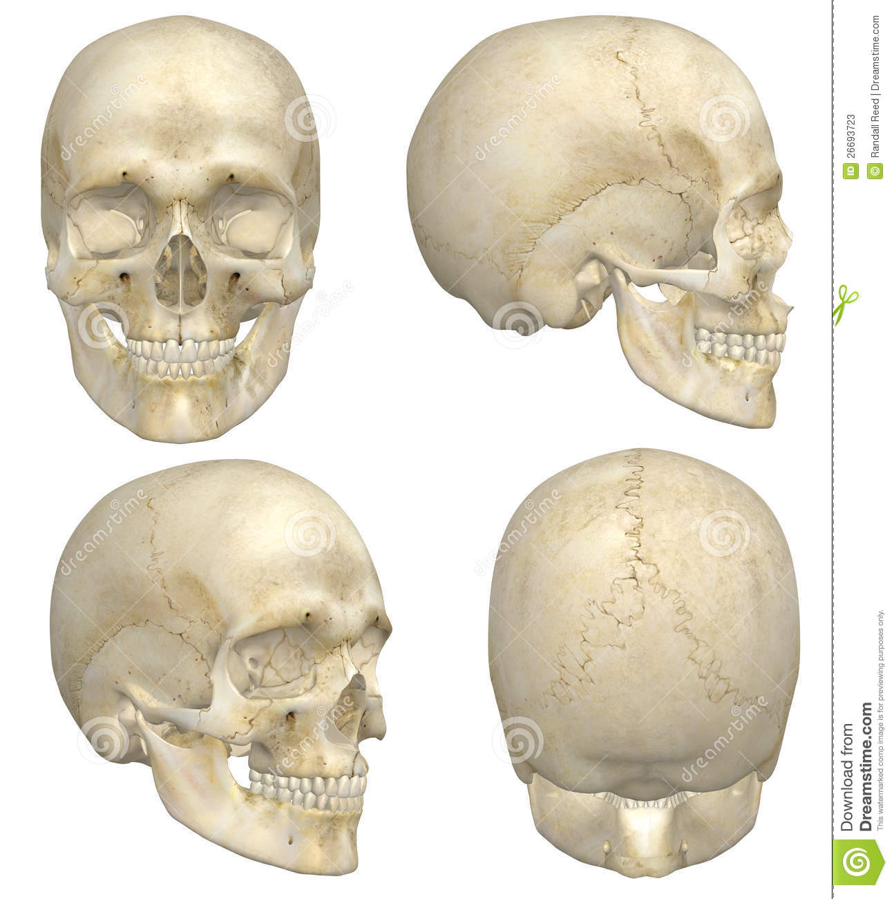 Human Skull Stock Illustration Image Of Fracture