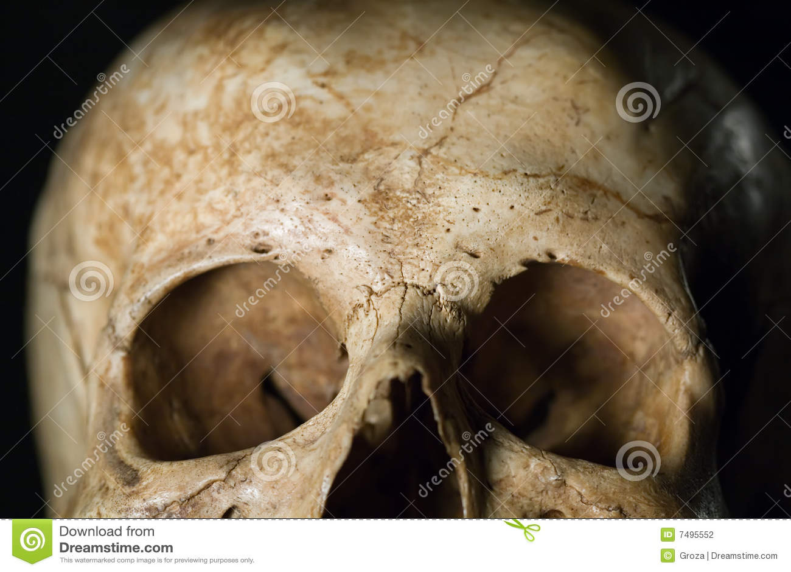 Human Skull Stock Photo Image Of Fracture Bone Biology