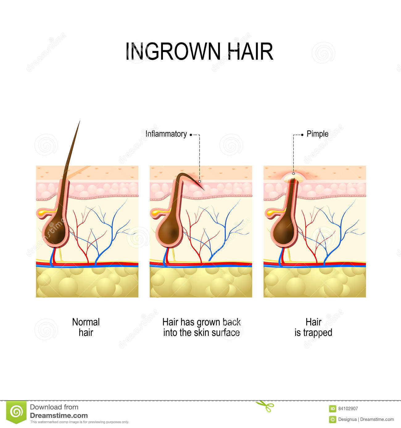 Hair Follicle Diagram Worksheet