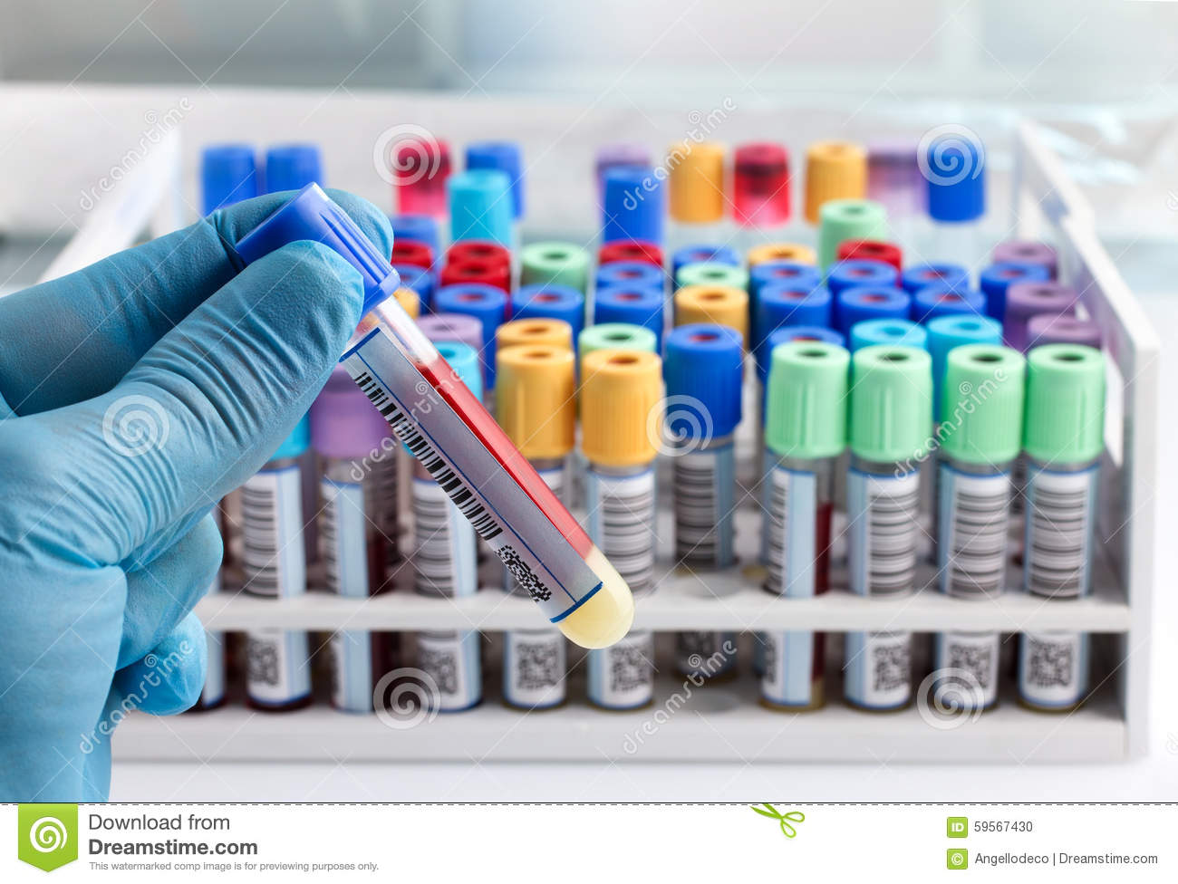 Laboratory Technician Holding A Blood Tube Test Labeled With Bar Stock Photo