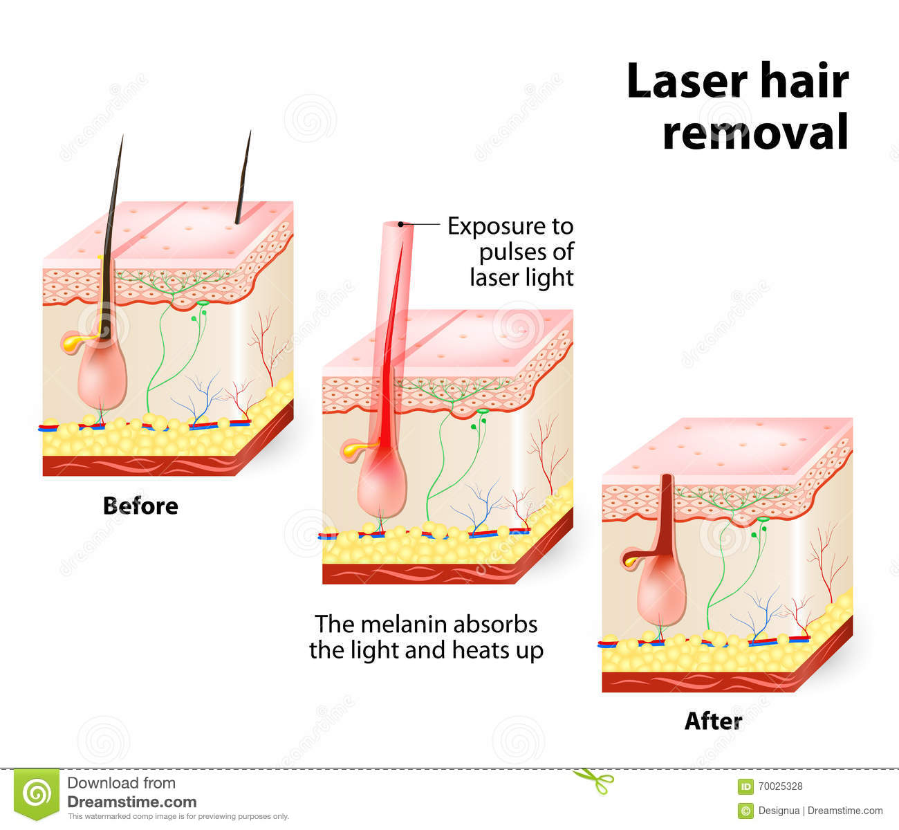 Laser Hair Removal Vector Diagram Stock Vector