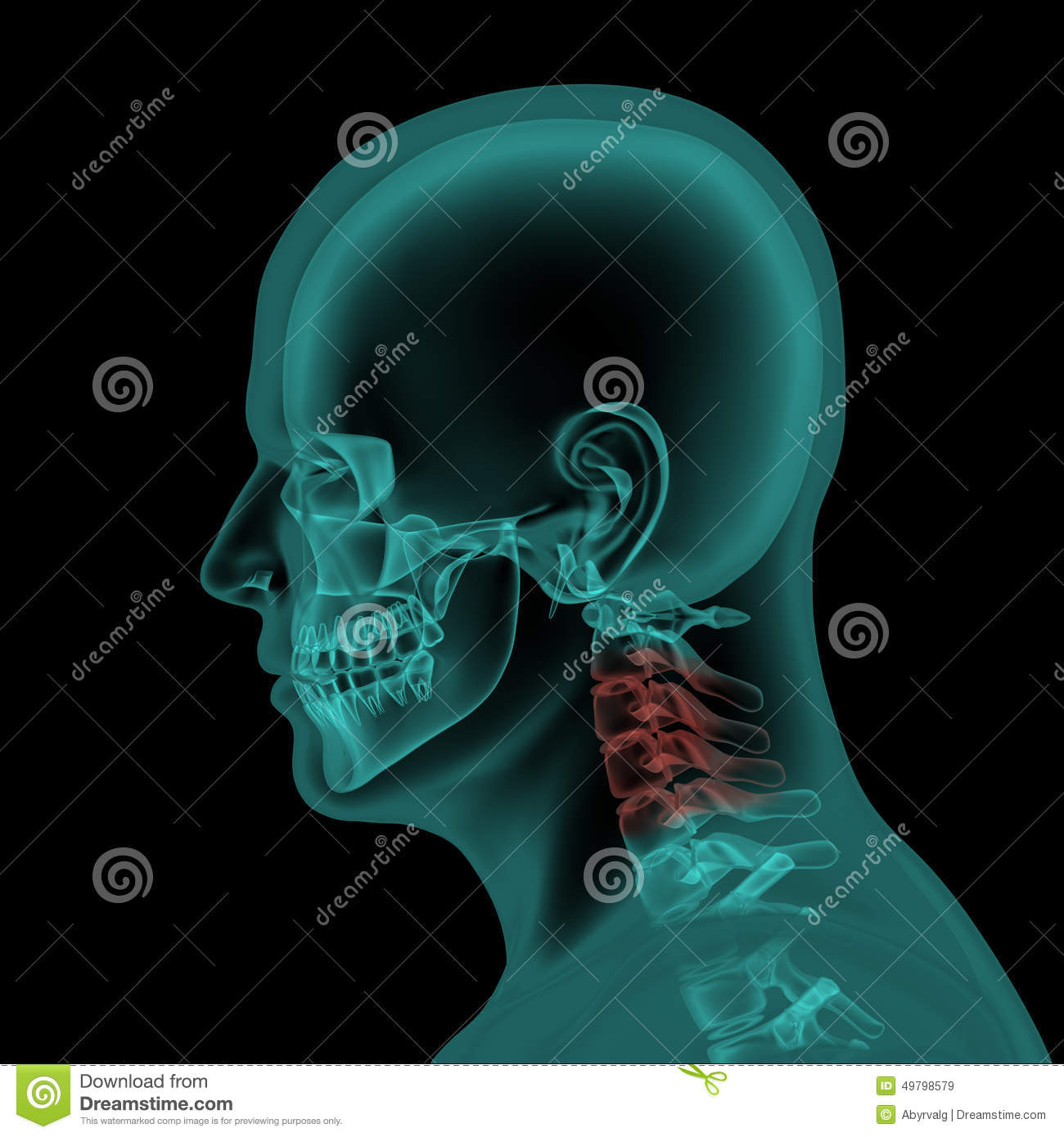 Lateral X Ray View Of Human Skull And Neck Stock