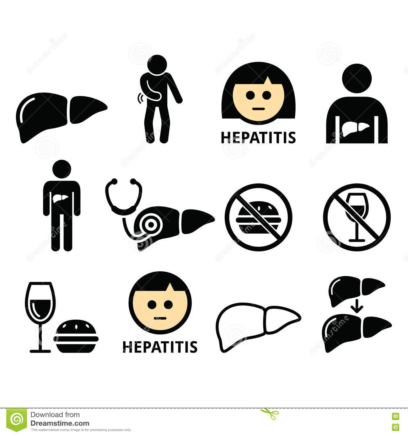 Alcoholic Liver Disease Vector Illustration