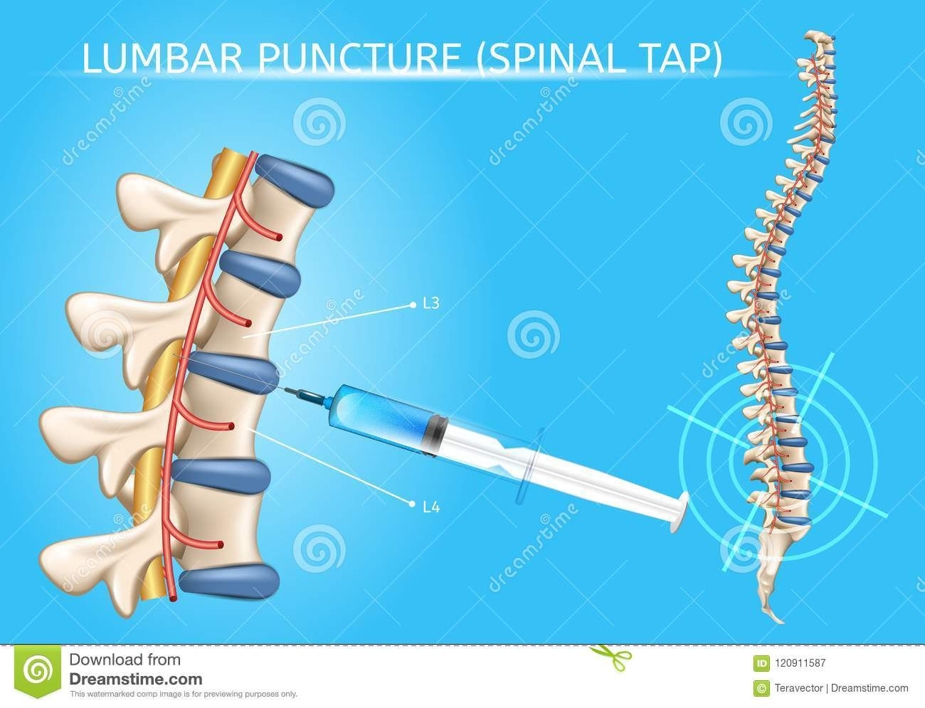 Medical Puncture Cartoons Illustrations Amp Vector Stock