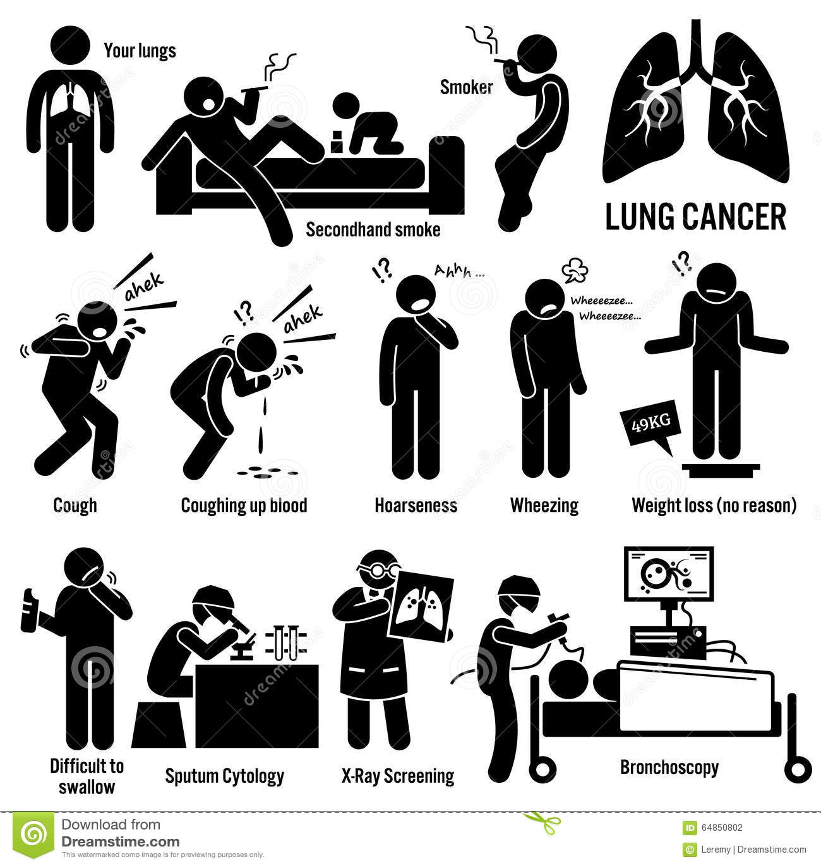 Lung Cancer Clipart Vektor Abbildung Illustration Von