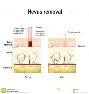 Moles Spots Or Nevus Removal Stock Vector  Image: 83773977