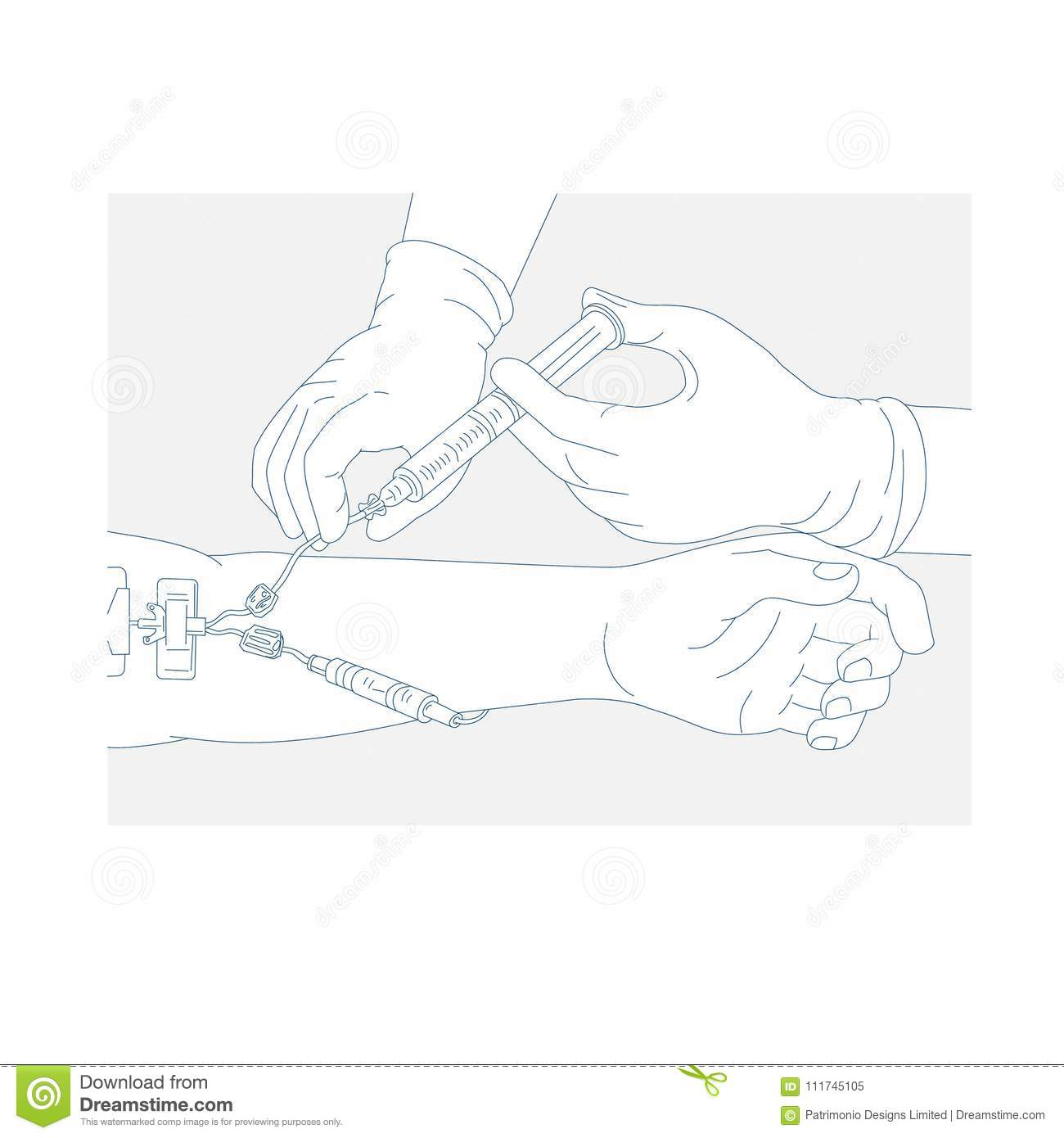 Drawing Of Catheter Insertion Into Heart Cartoon Vector