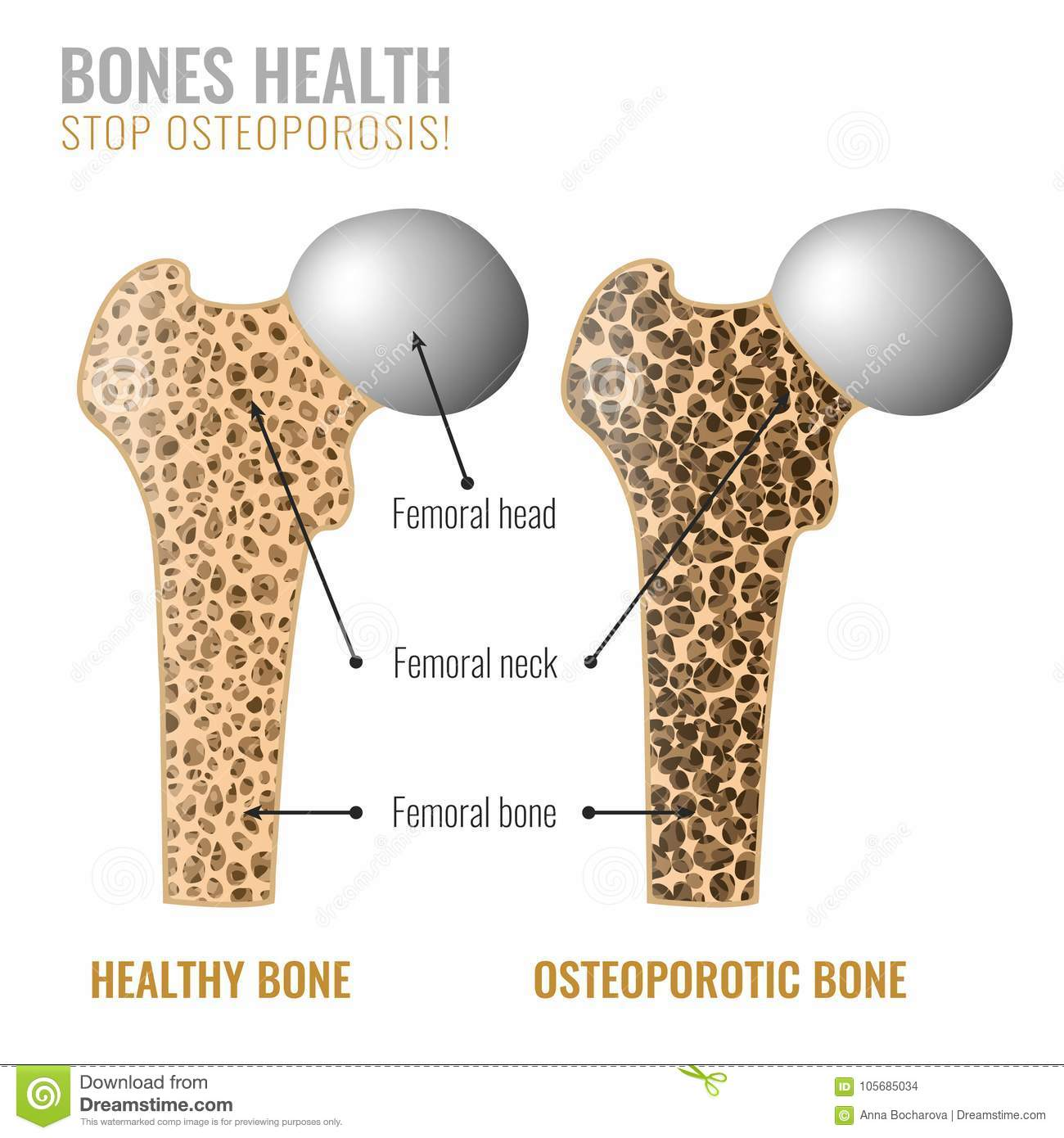 Osteoporosis Bone Image Stock Vector Illustration Of