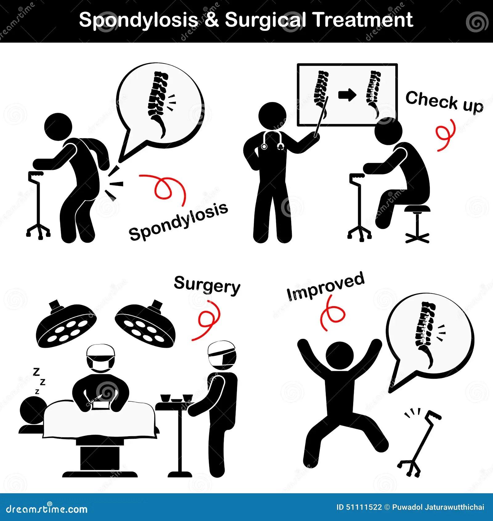 Pictogramme De Spondylose Et De Spondylolisthesis Et De