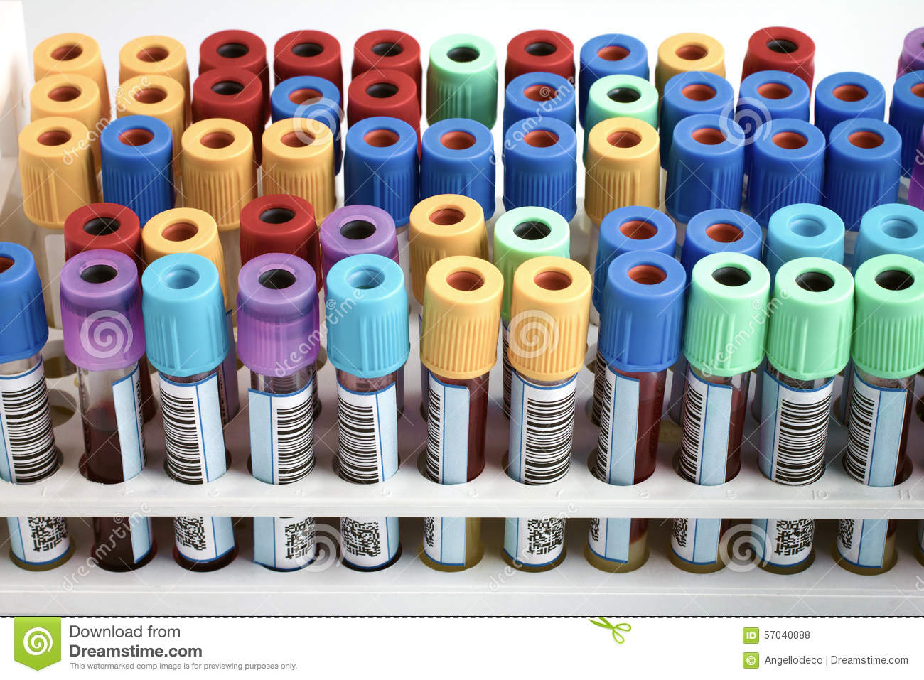 Rack Of Blood Tubes Labeled In Blood Bank Lab Stock Photo