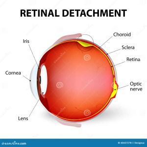 Retinal Detachment Vector Diagram Stock Vector
