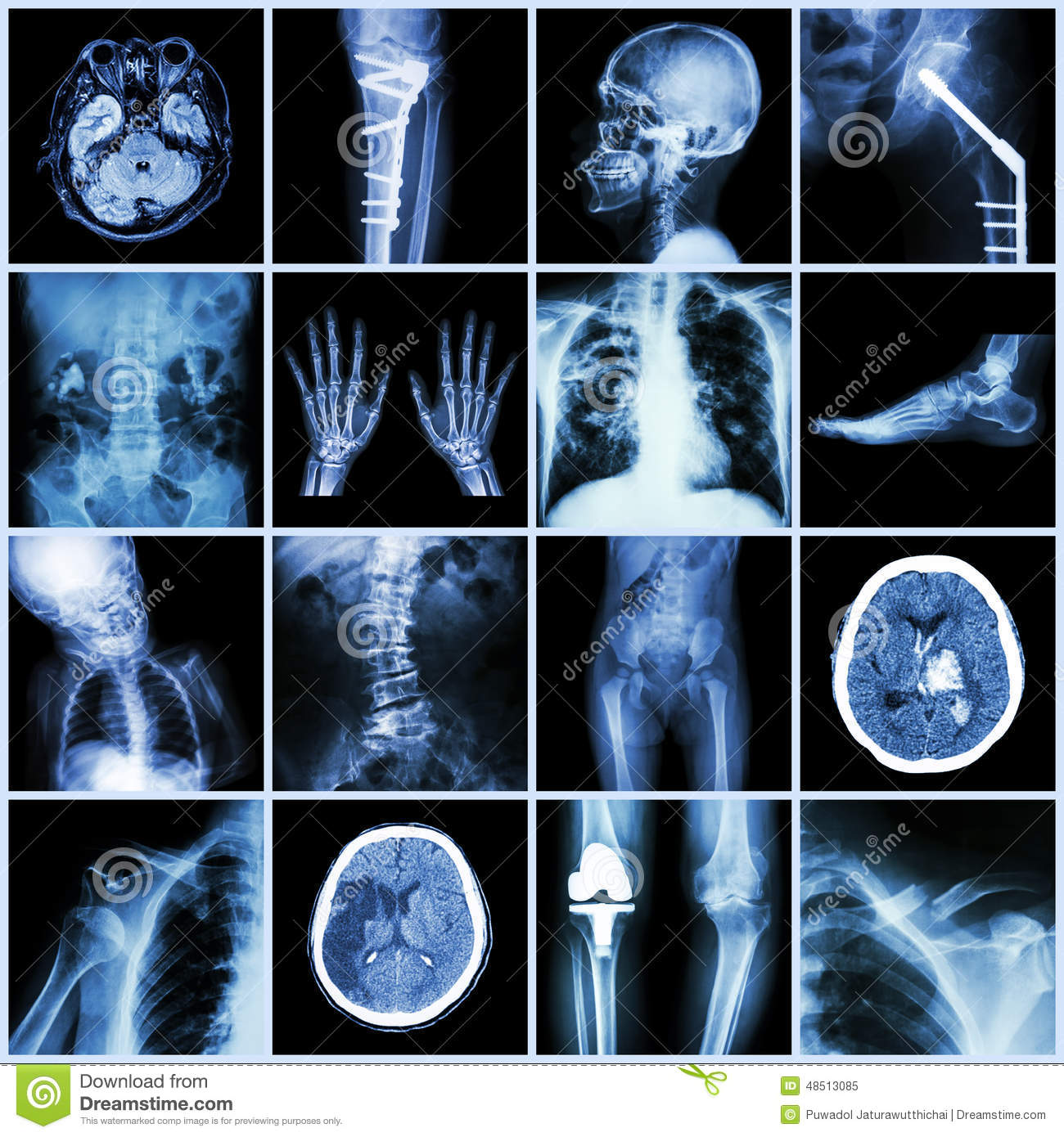 Set Of X Ray Multiple Part Of Human Multiple Disease