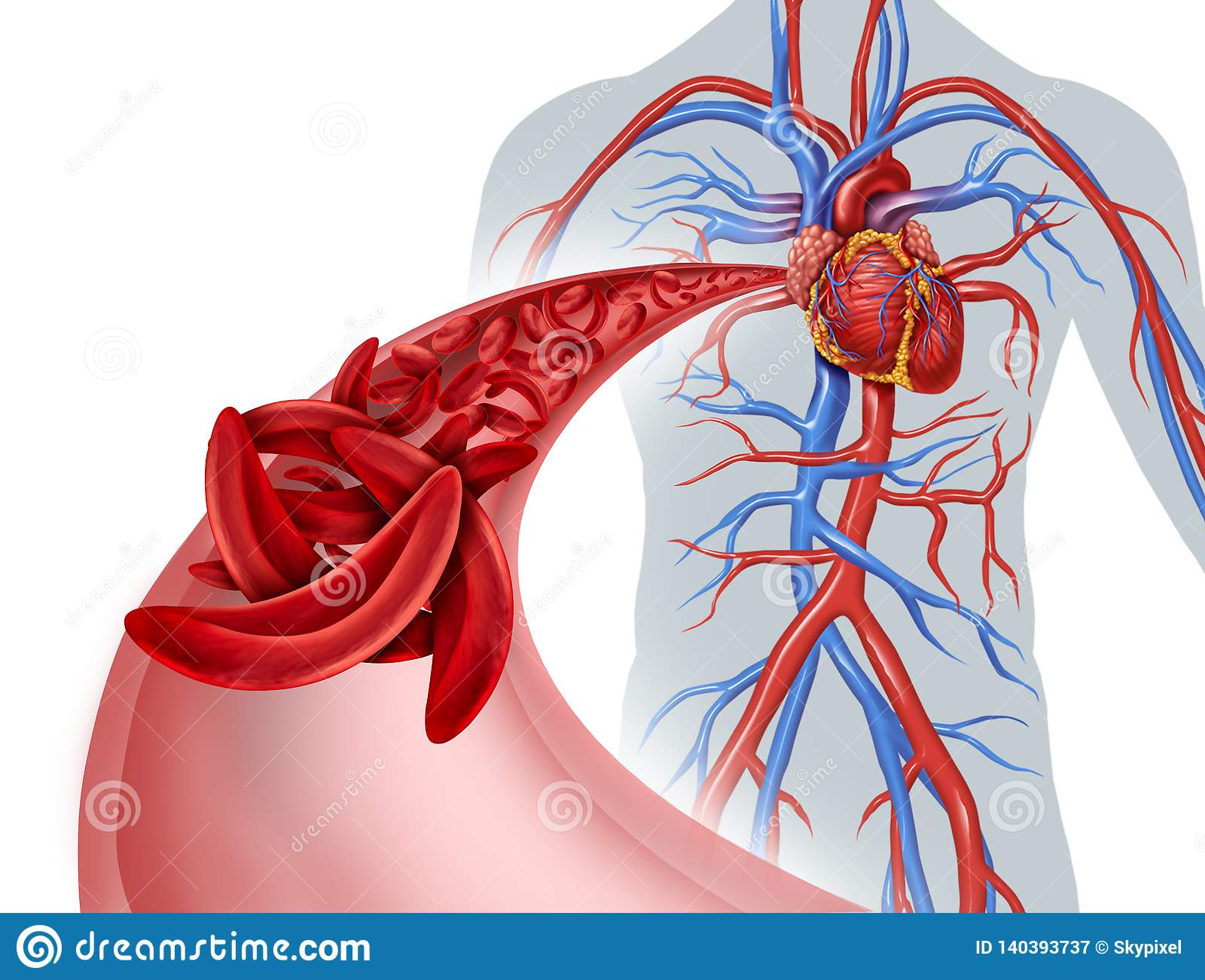 Sickle Cell Circulation Blockage Stock Illustration