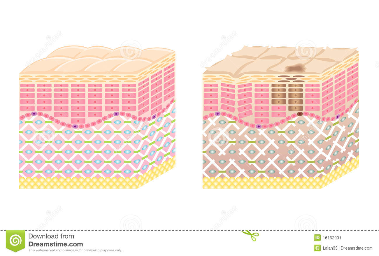 Skin Cross Section Stock Vector Illustration Of Facial
