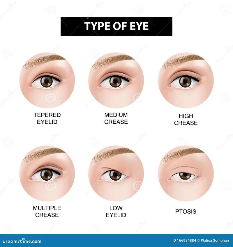 Eyelid Crease Stock Ilration