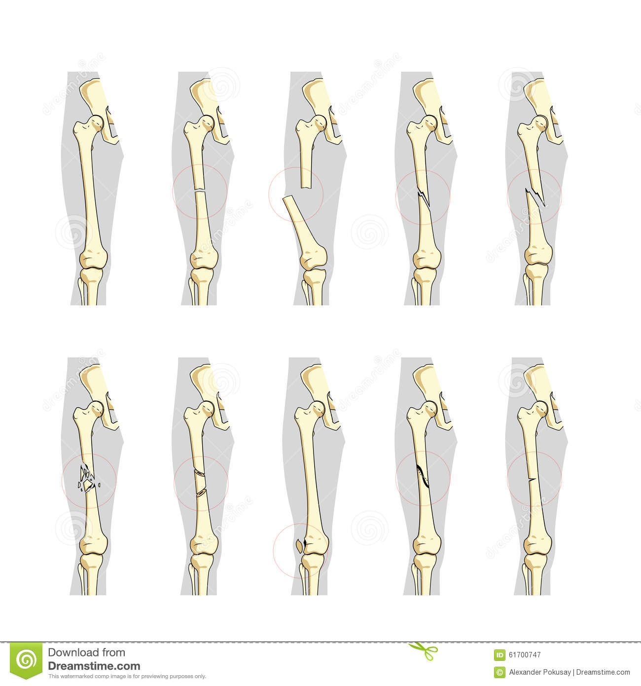 Types Of Bone Fractures Medical Educational Vector Stock