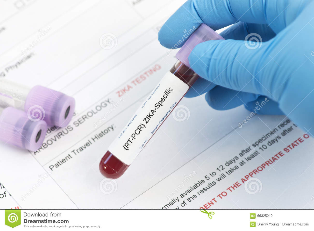 Zika Virus Lab Test Stock Photo