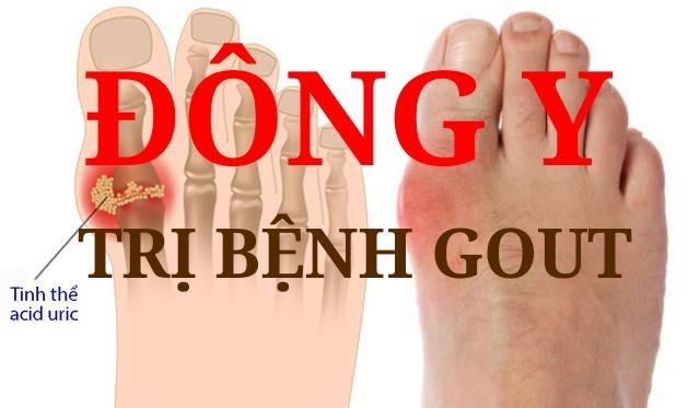 đông y trị bệnh gout