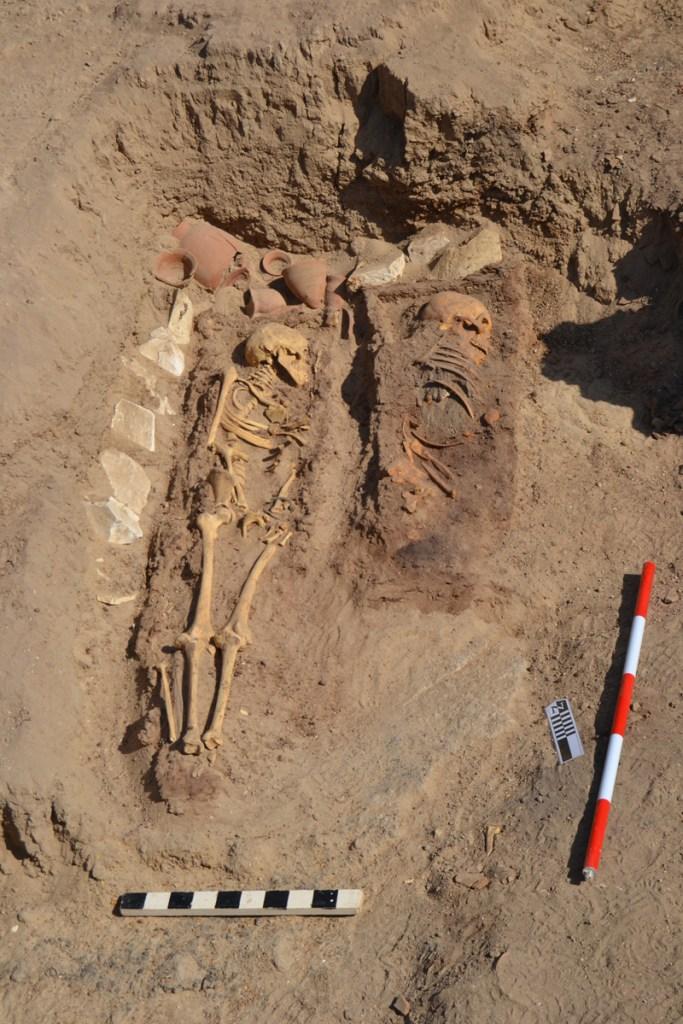 Identificados casos de leucemia, espina bífida e hidrocefalia en los cadáveres de las tumbas 02