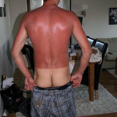 Scandinavians and sun = a bad mix