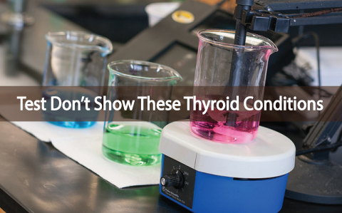 Tests-Don't-Show-These-6-Thyroid-Conditions