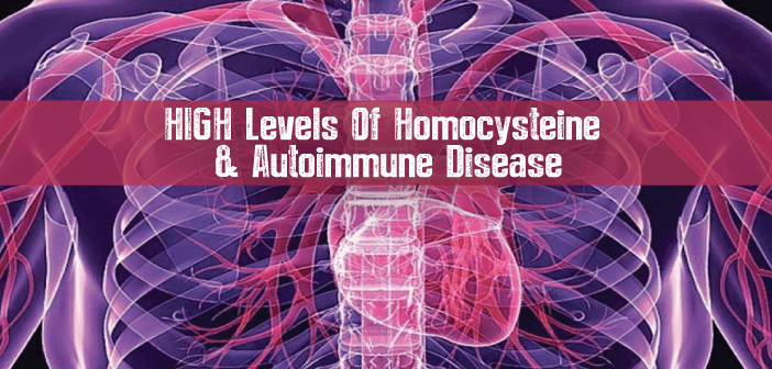 High-Levels-Of-Homocysteine-Linked-To-Autoimmune