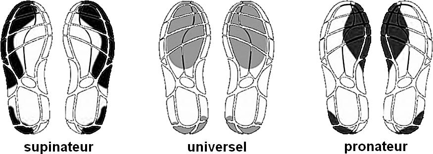 Les différents types de foulée : supinateur, universel, pronateur